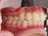 上顎前突症(出っ歯) 治療後
